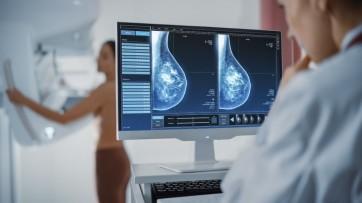 Departamento de Saúde divulga atendimentos de mamografia realizados até o mês de setembro.
